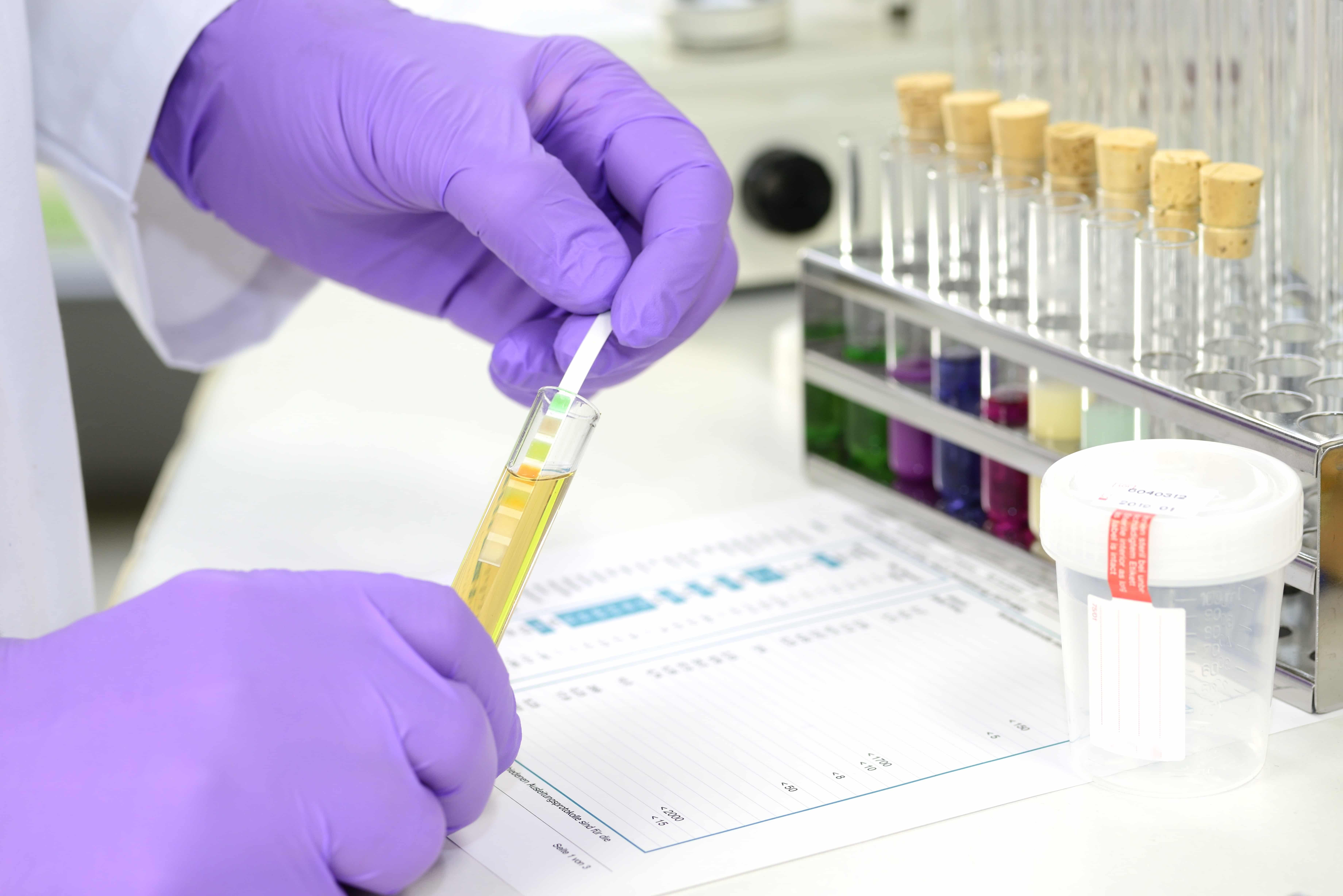 What Happens During a Drug Screening?